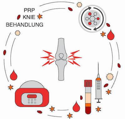 Beschreibung der PRP Behandlung am Knie