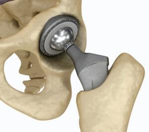 Ansicht einer Hüftprothese
