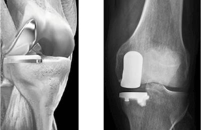 Implantat eines Teilgelenksersatzes
